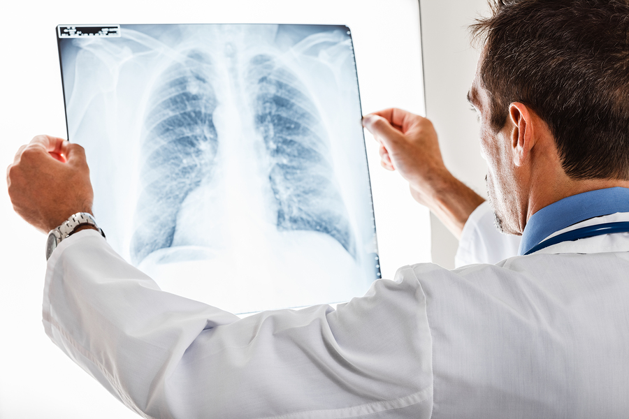 doctor examining lungs