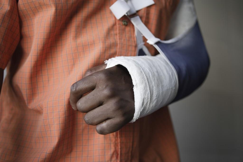 personal injury broken arm