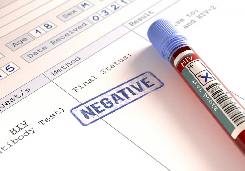 HIV false positive