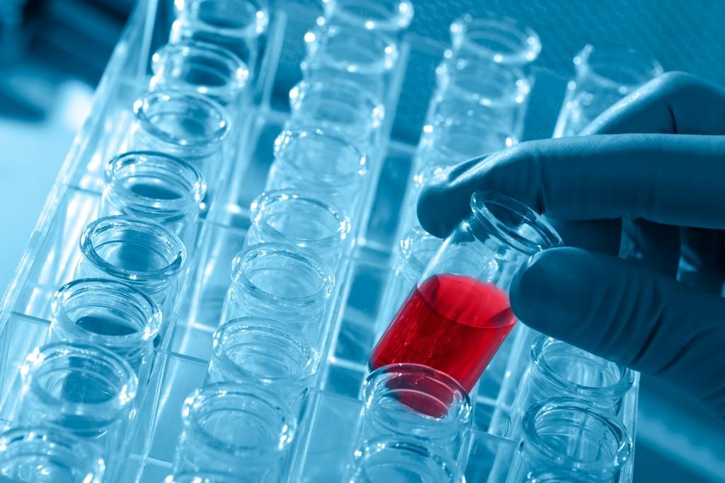 medical laboratory malpractice