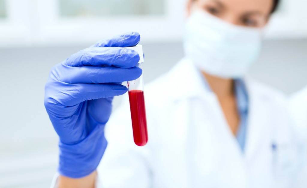 medical lab errors