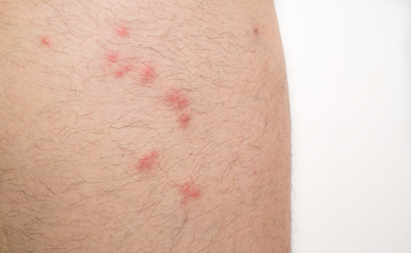 Mosquito, Spider, and Bed Bug Bite Similarities and Differences