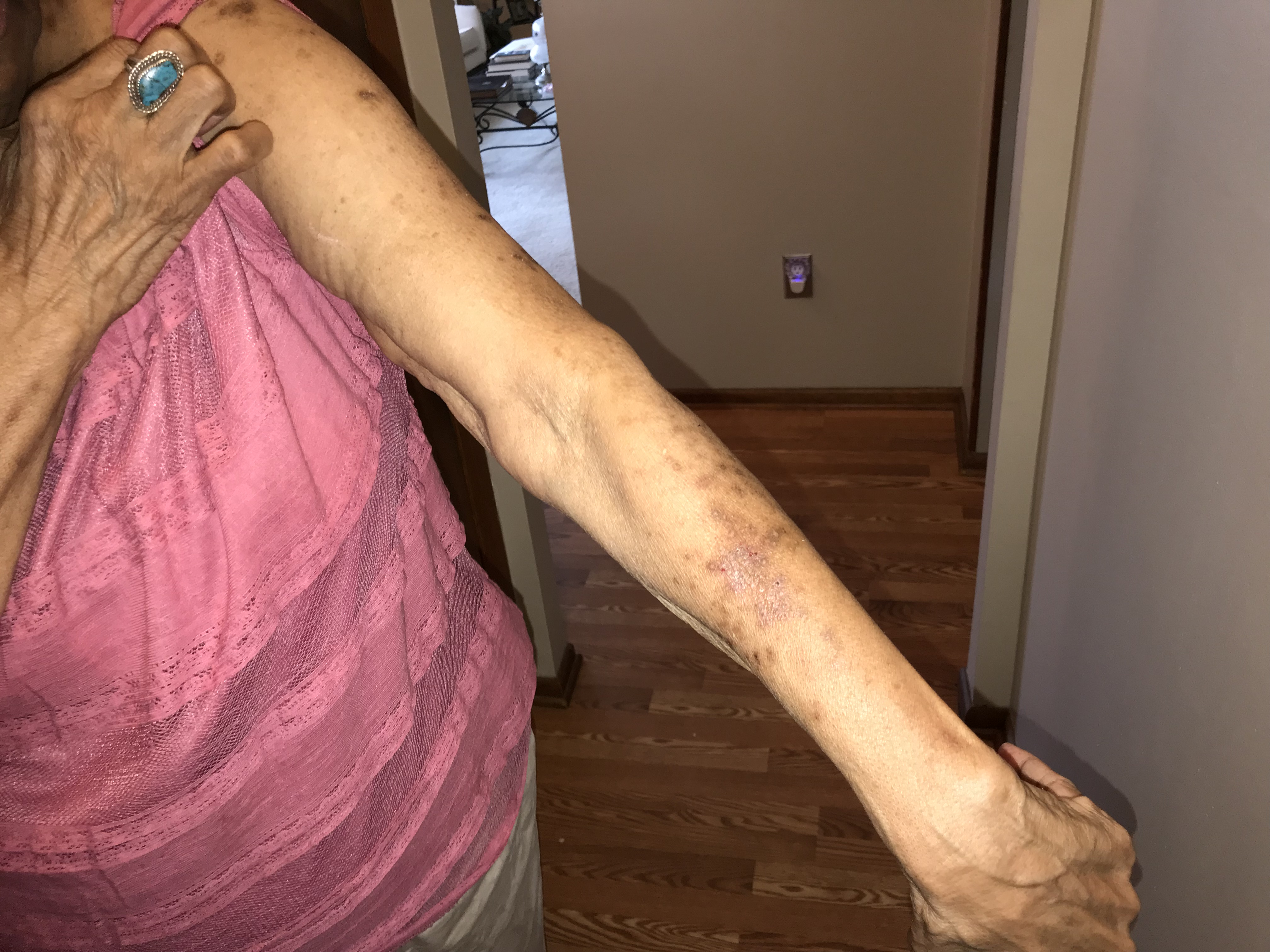 Retirement Home Bed Bug Injury MD