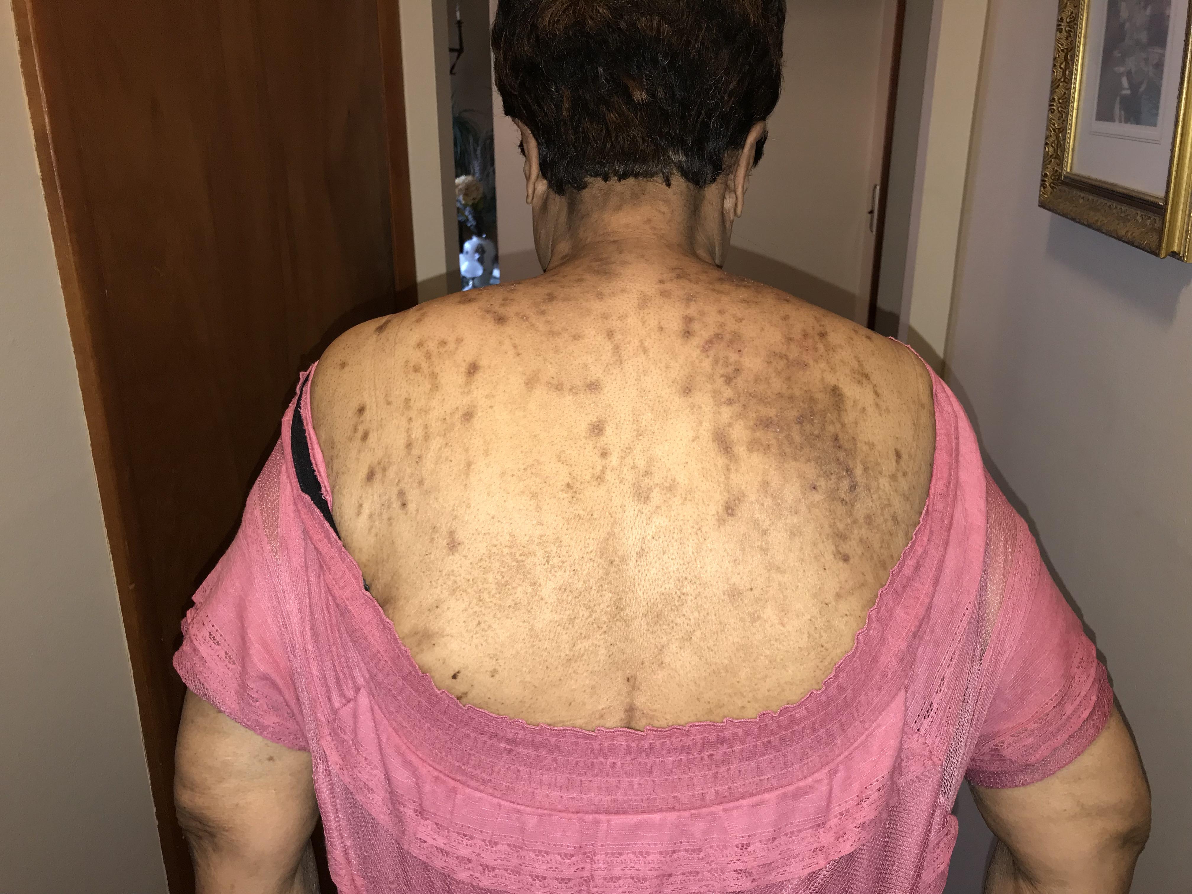 Bed Bug Infestation Lawyer Maryland